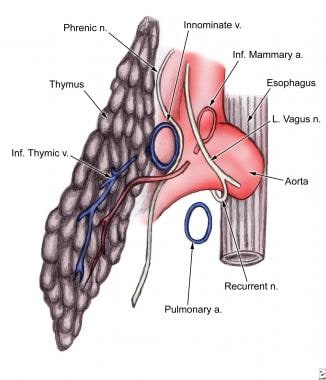 Lateral view of thymus. Thymic arteries are derive