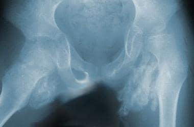 This radiograph clearly demonstrates fairly extens