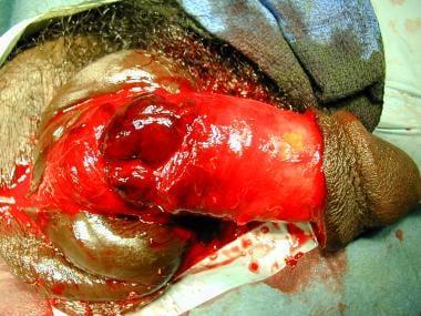 More severe penile fracture.