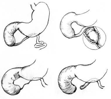 Three anatomic types of duodenal atresia are recog