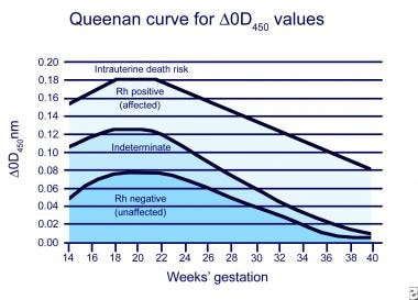 Queenan Curve: Modified Liley curve that shows del