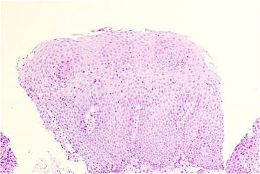 Histology from a patient with eosinophilic esophag