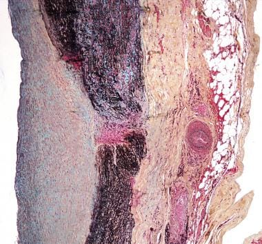 A 40-year-old woman with aortic insufficiency had
