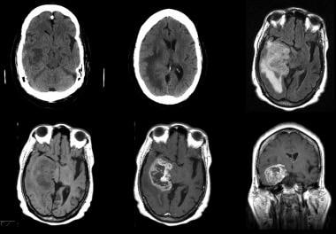 Grade IV astrocytoma in a 73-year-old man. Top row