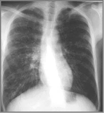 Cystic fibrosis, thoracic. Image in a 27-year-old