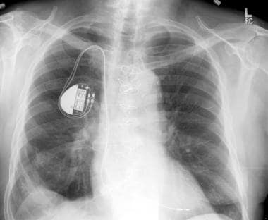 Chest radiograph. Increasing numbers of patients a