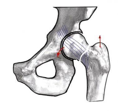 Image depicting a Garden II hip fracture.