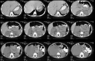 Unenhanced axial CT scans shows a 6 x 8 cm mass lo