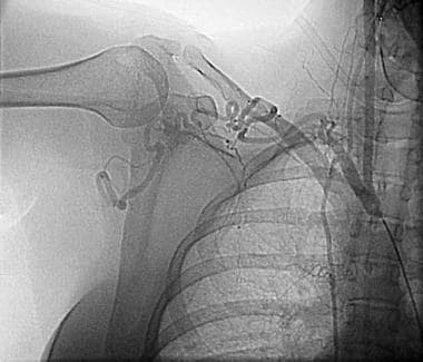 An angiogram in a 35-year-old woman with right arm
