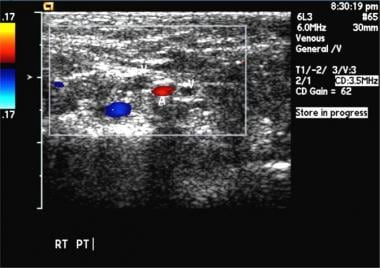 Bilateral popliteal vein thrombosis with normal co