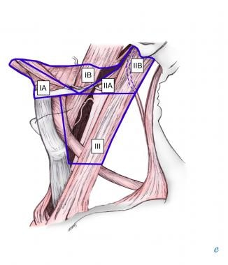 Selective neck dissection levels I-III.