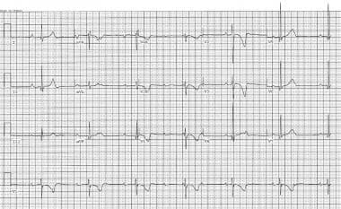 Electrocardiogram illustrates 2-year-old child wit