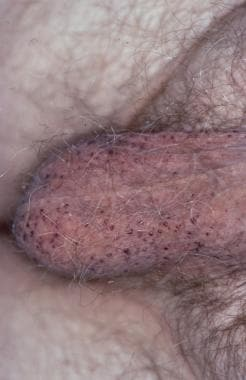 my penis bleeds