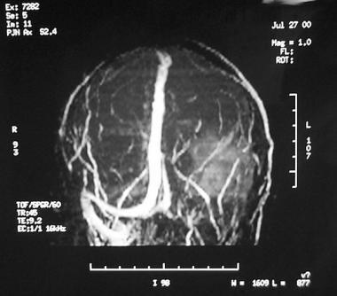 Coronal view of magnetic resonance (MR) venogram d