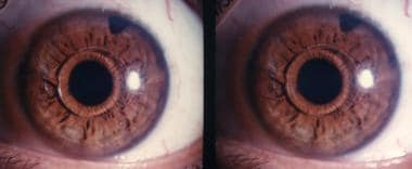 Phakic minus iris claw lens, 12 years postoperativ