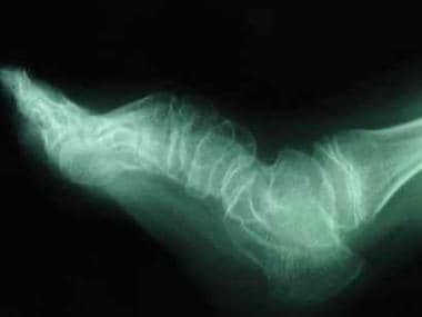 Deformity of the foot in a patient with diastrophi