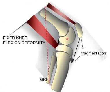 Fixed knee flexion deformity (FKFD). The knee is c
