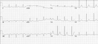 This ECG represents a patient who came in to the e