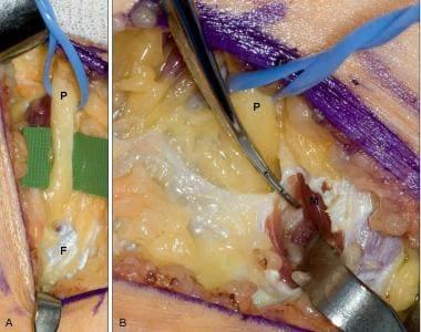 Common peroneal nerve decompression at the fibular