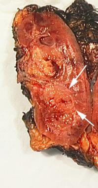 Pathology specimen shows urothelial tumor of renal