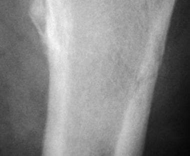 Enlarged view of the fracture shown in the above i