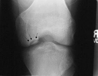 Anteroposterior radiograph of medial femoral condy