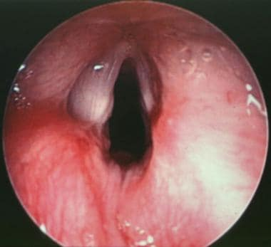 Postoperative close-up view of the true vocal cord
