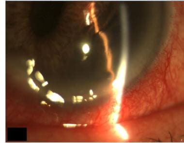 Inferior iris melanoma of the left eye that is pus