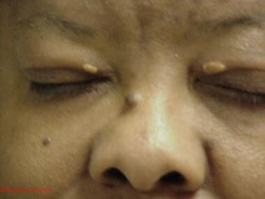 Xanthelasma palpebrarum in a patient with familial