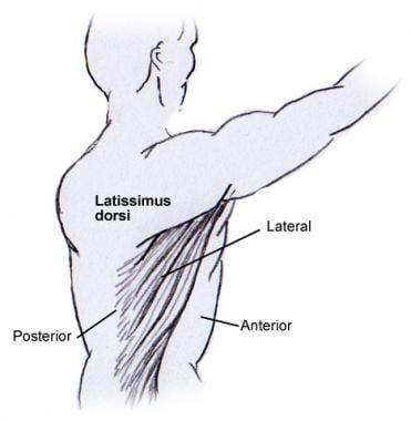 The latissimus dorsi muscle. The latissimus dorsi