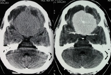 Transverse axial CT without and with contrast show