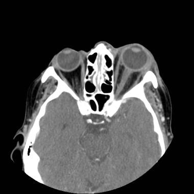 Axial postcontrast CT scan of a 56-year-old woman