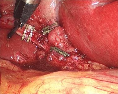 Open cholecystectomy operative report