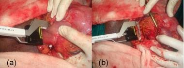 (a) Subtotal gastrectomy in progress. Linear stapl