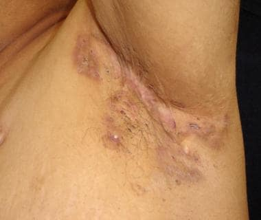 Close-up view of axillary hidradenitis suppurativa