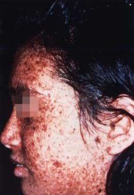 Sunlight-induced dermatologic abnormalities in a p