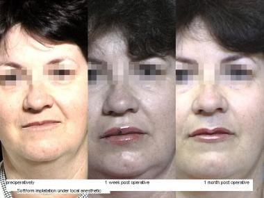SoftForm lip implantation. Gore-Tex (W.L. Gore & A