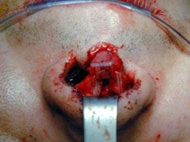 Lengthening procedure (different patient) for the