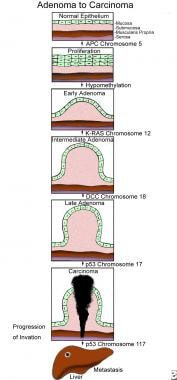 Pictorial representation of the adenoma-to-carcino
