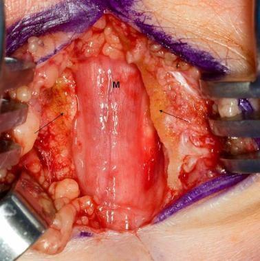 Median nerve (M) after decompression at the wrist;