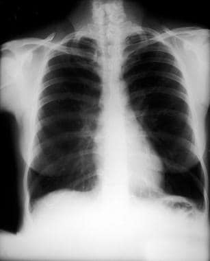 A lung with emphysema shows increased anteroposter
