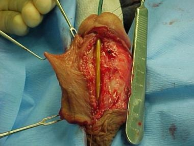 sex after urethral stricture surgery