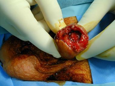 Partial penile amputation.