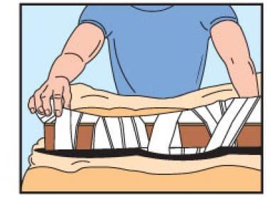 The Australian pressure immobilization technique.