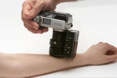 Digital camera with implemented EPI30 zoom lens. C