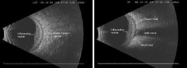 Nodular posterior scleritis with fluid in the Teno