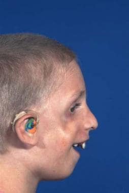 Treacher Collins syndrome. Preoperative appearance