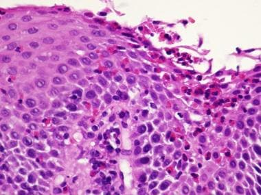 Superficial layering of eosinophils with desquamat