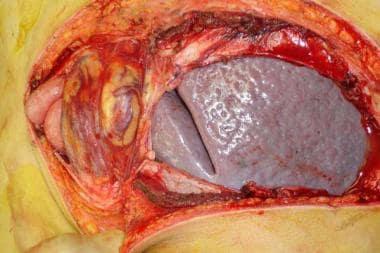 Left oblique abdominal incision showing severe (ma