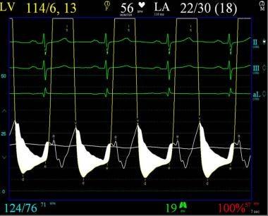 Pulmonary capillary wedge pressure and left ventri